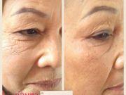 เลอพีเม่ le peme เซรั่มสเต็มเซลล์หน้าเด็ก หน้าเรียว V shape ช่วยลดร่องแก้ม กระชับถุงใต้ตา ผิวหน้าเนี